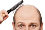 Haarausfall Stoppen – Auf natürliche Weise